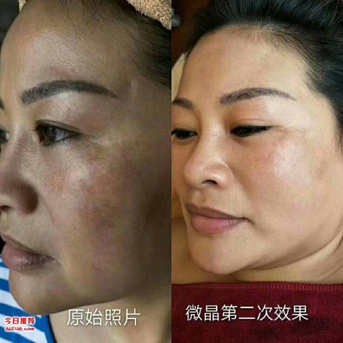 专业祛斑液氮冷冻祛斑 五天皮膜祛斑 微晶换肤培训