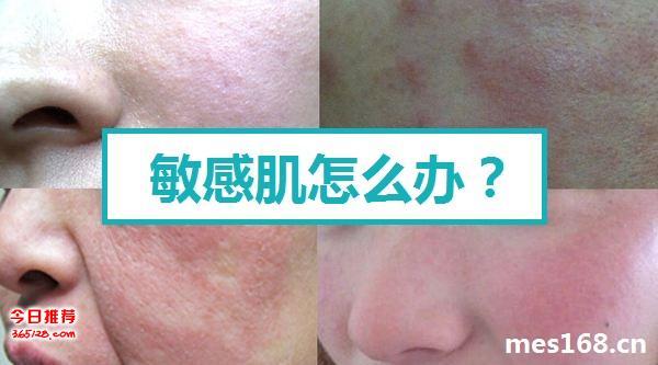 敏感肌如何正确使用皮肤管理产品